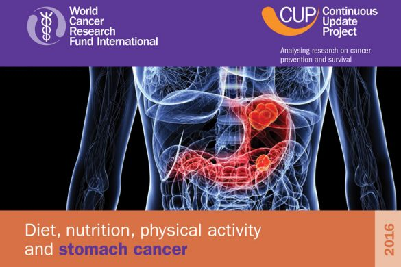 WCRF Nutrition, Physical Activity and Stomach Cancer